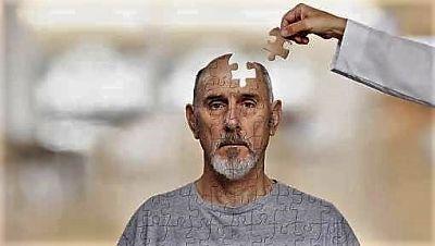 Alzheimer rompecabezas